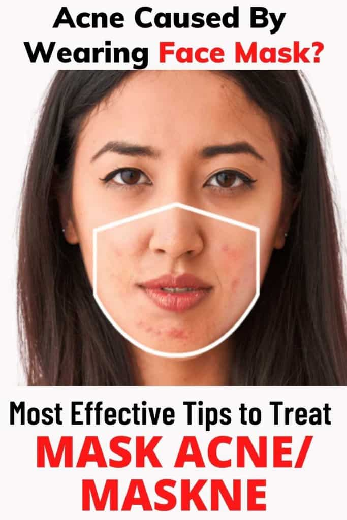 HOW TO TREAT MASK ACNE / MASKNE